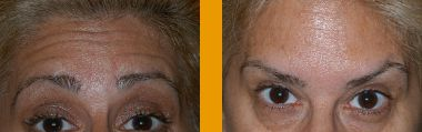 Botox 02- Smiles By Glerum - Boynton Beach, FL