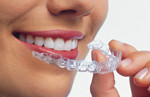 Invisalign Clear Braces- Smiles By Glerum - Boynton Beach, FL